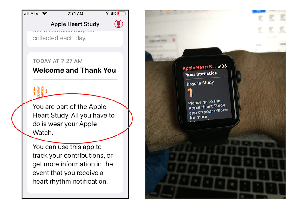 Apple Watch heart study step 4